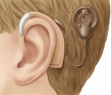 Signal Coding for Cochlear Implants